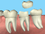 crowns-tooth-shaped