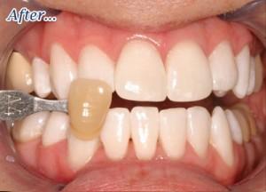 teethafter