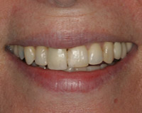 veneers-before-3